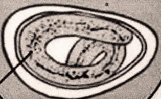 enterobius vermicularis ova treatment
